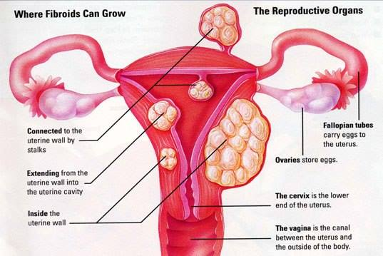 Hvor muskelknuter kan vokse i livmoren